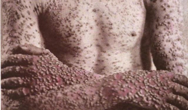 A varíola pode se manifestar de forma violenta, com bolhas em toda a superfície do corpo, causar cegueira e morte. - Gente de Opinião