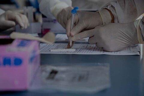 Porto Velho terá testagem em massa da covid-19 na sexta-feira (17)